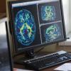 创新科技资讯:放射学中AI的10个关键用途不涉及解释